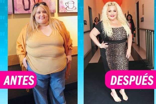 Sheyla antes y después