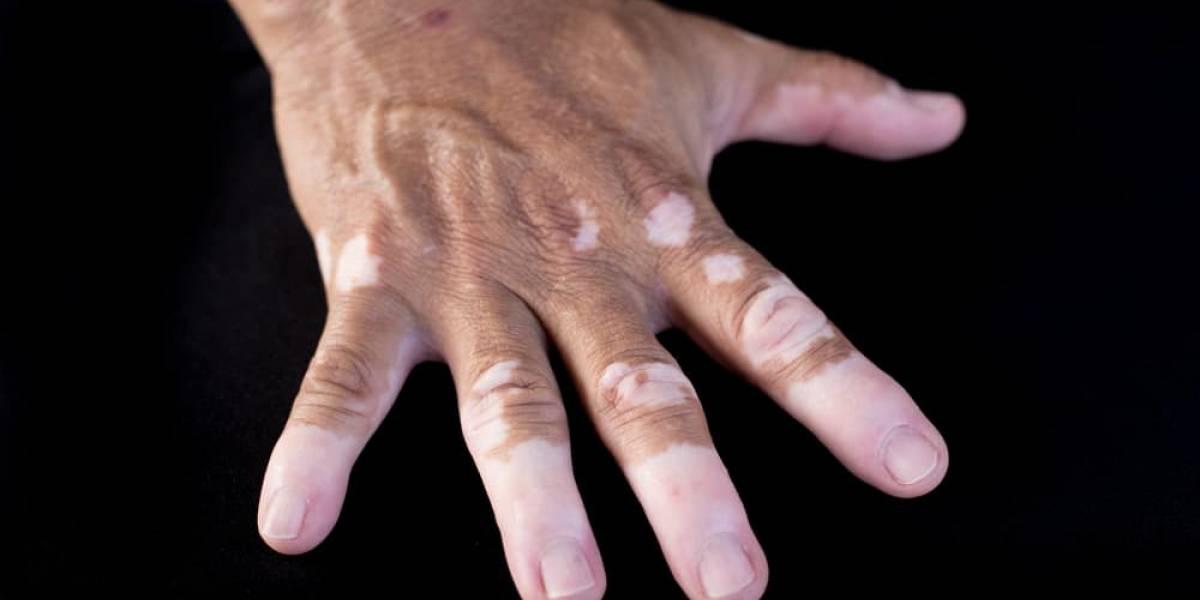¿Cuáles son las diferencias entre el mal del pinto y el vitiligo?