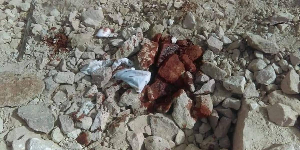Obrero sufre lesiones tras explotarle dinamita en Oaxaca