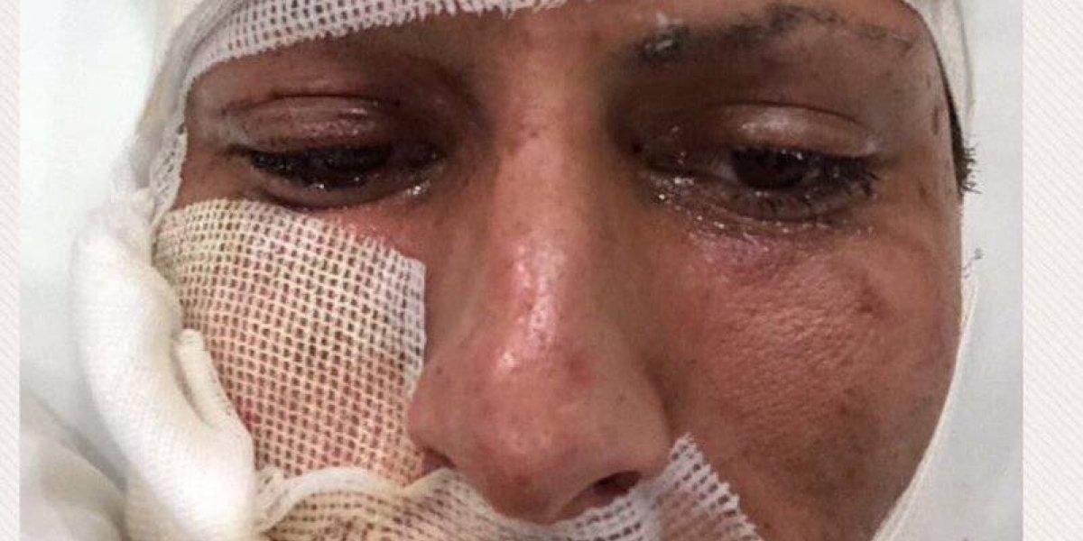 Circula foto de Jürgen Damm tras accidente con fuegos pirotécnicos