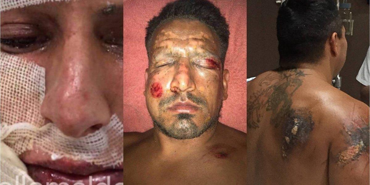 Jurgen Damm y otros jugadores que resultaron heridos por quemaduras