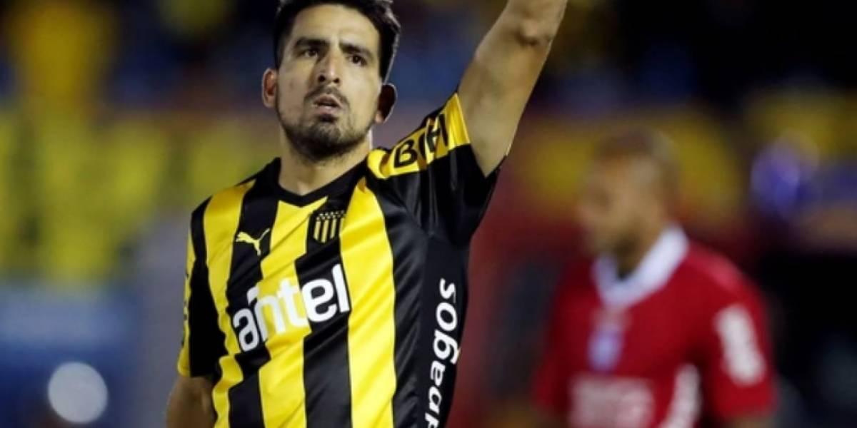 Goleador argentino con el rostro desfigurado tras accidente con fuegos artificiales