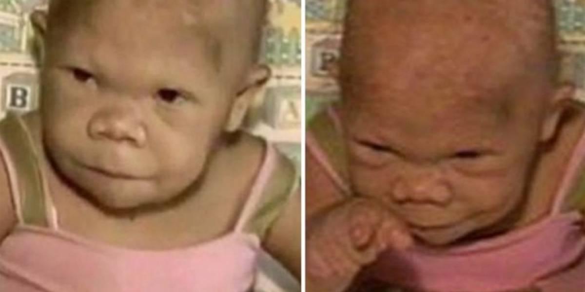 Audete, la mujer de 36 años que tiene cuerpo de bebé