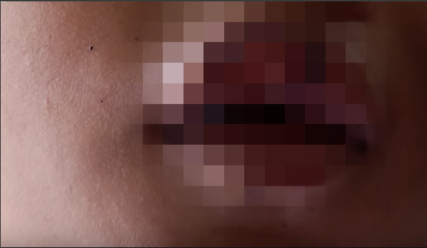 Niña fue brutalmente agredida por un perro pitbull