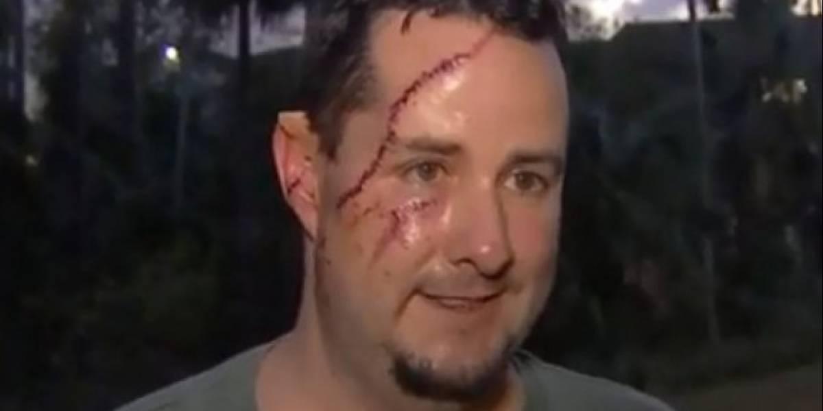 En Estados Unidos un hombre sobrevivió al ataque de un oso en la puerta de su casa