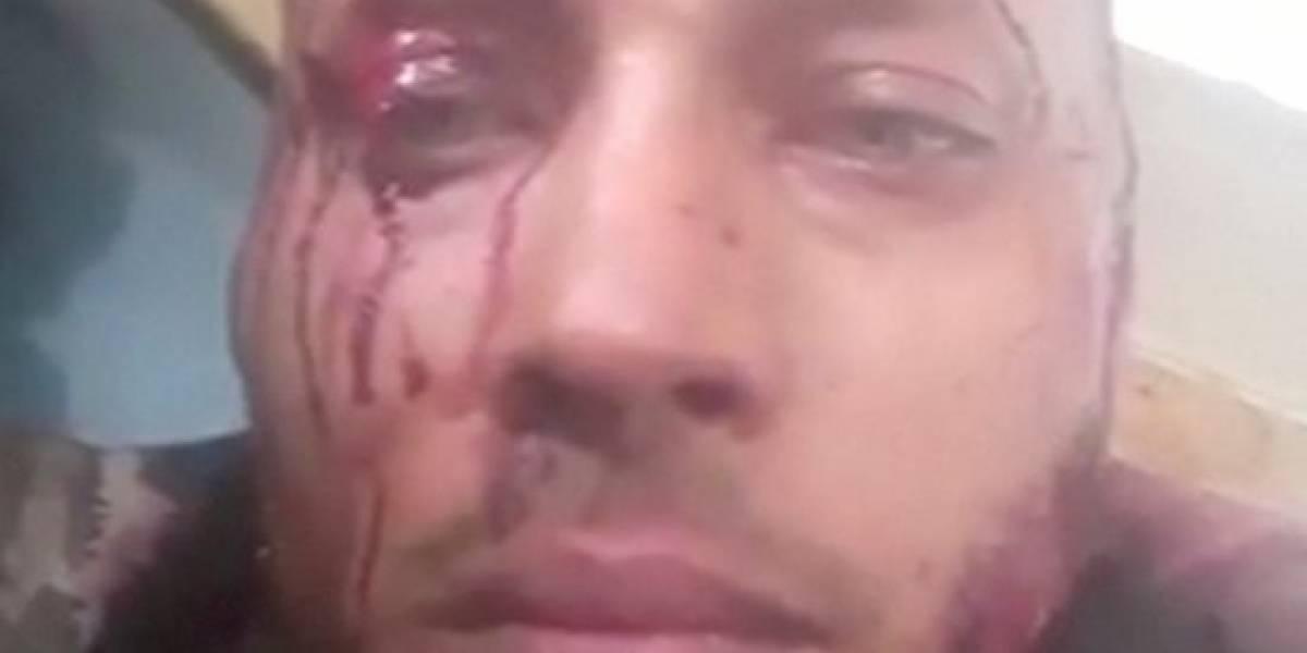 Muerte de Óscar Pérez demostraría la dictadura de Maduro — Andrés Pastrana