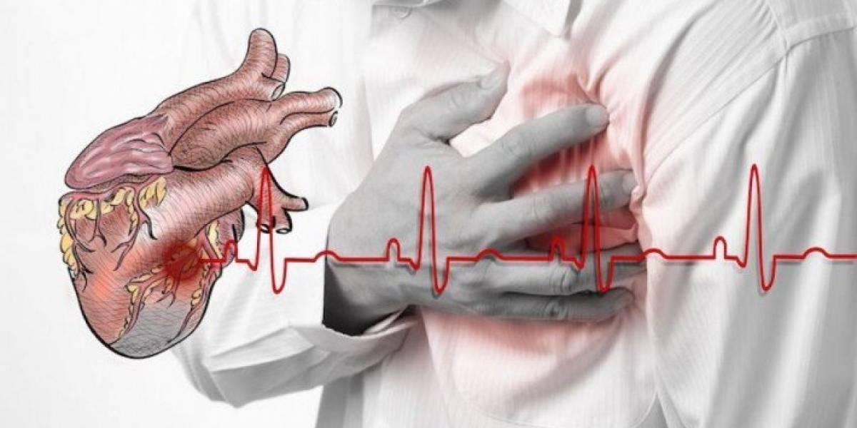 ¿Cómo saber si estás sufriendo un infarto?