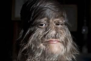 La mujer más peluda del mundo se afeita para casarse y así luce