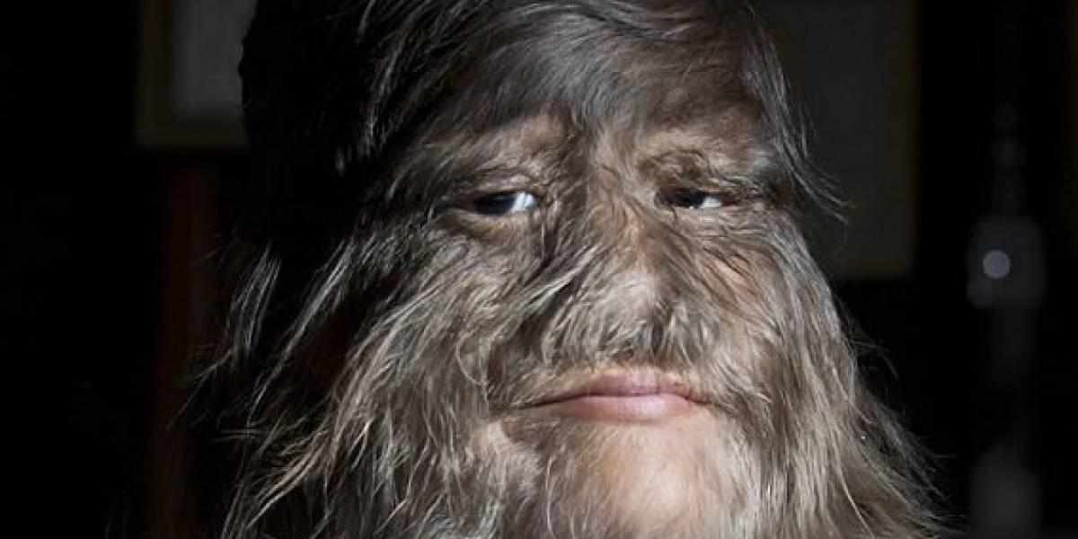 Mulher mais peluda do mundo decide se depilar para seu casamento; veja