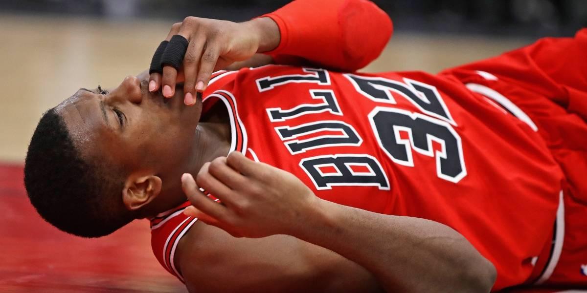VIDEO: Jugador de Bulls sufre estrepitosa caída y se rompe los dientes frontales