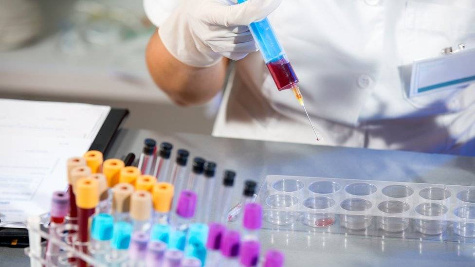 exame que detecta cancer