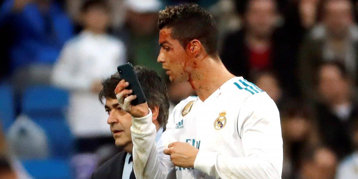 ¡Cristiano Ronaldo salió ensangrentado del Bernabéu!