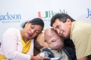 https://www.metrojornal.com.br/bbc-mundo/2018/01/21/morre-emanuel-o-adolescente-cubano-que-tinha-um-enorme-e-raro-tumor-no-rosto-apos-ser-operado-nos-eua.html