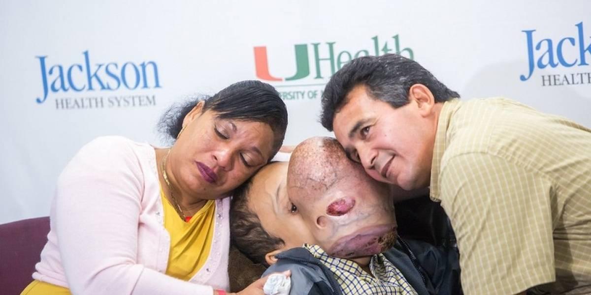Morre menino cubano após cirurgia para retirar tumor que cobriu seu rosto em dois anos