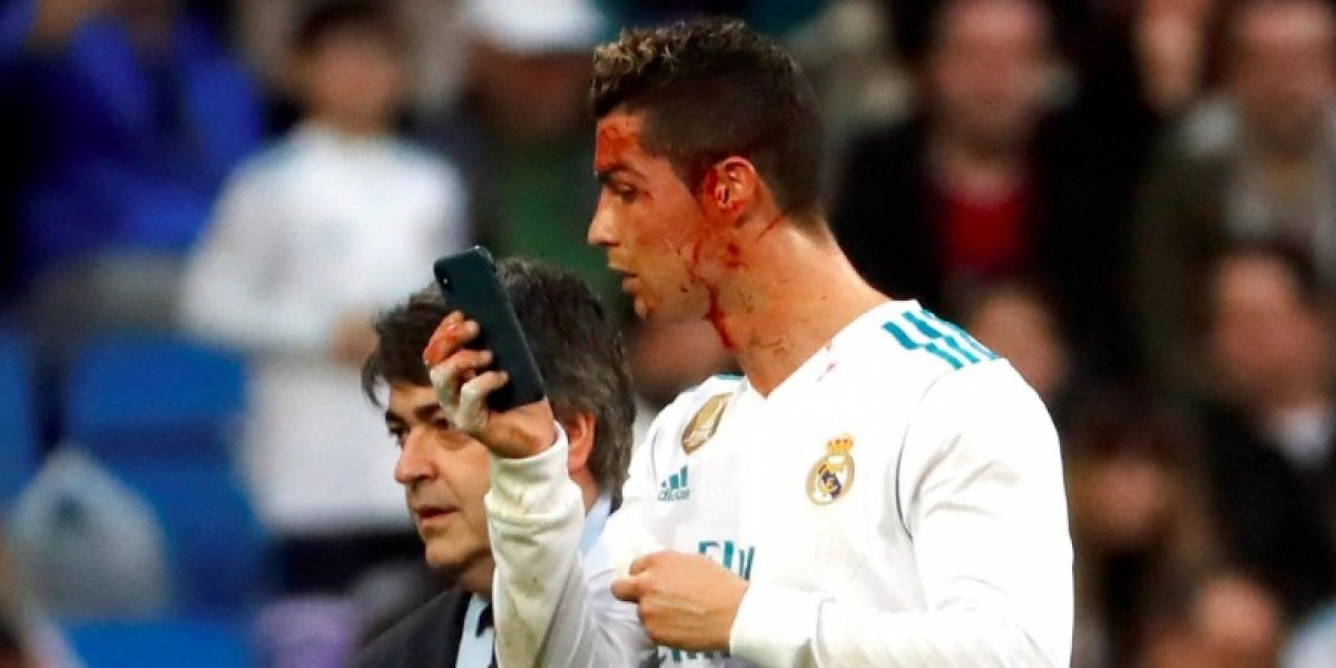 VIDEO: Cristiano Ronaldo sale del campo ensangrentado