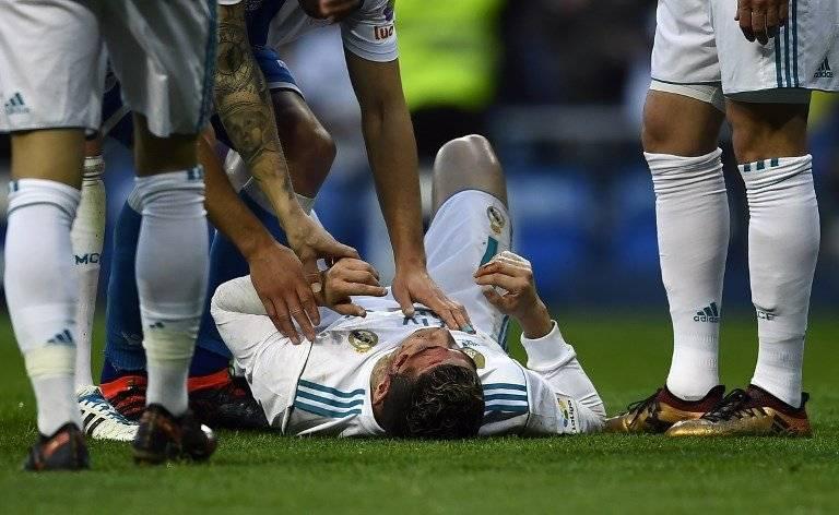 Cristiano Ronaldo lastimado