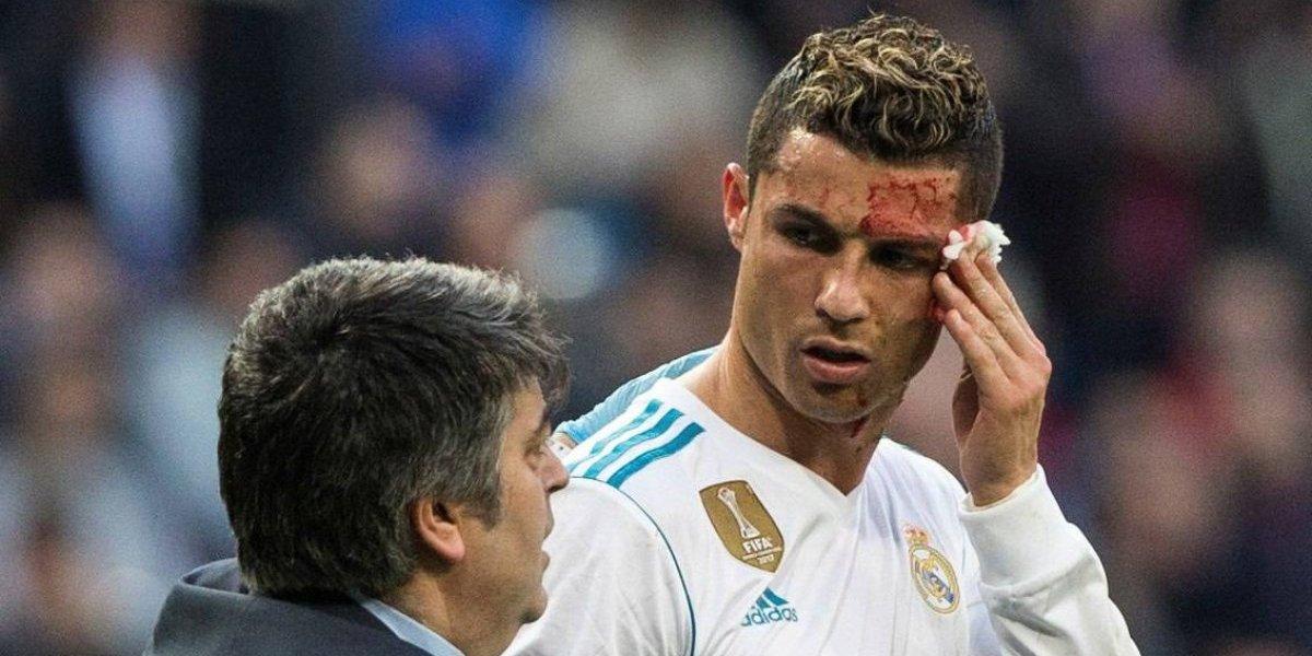 Así le quedó la cara a Cristiano tras el corte que sufrió ante La Coruña