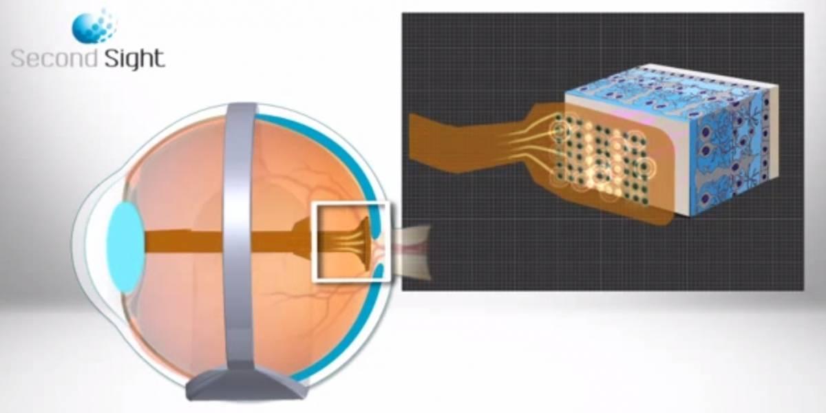 Mujer recupera la vista gracias a una operación de implante de retina