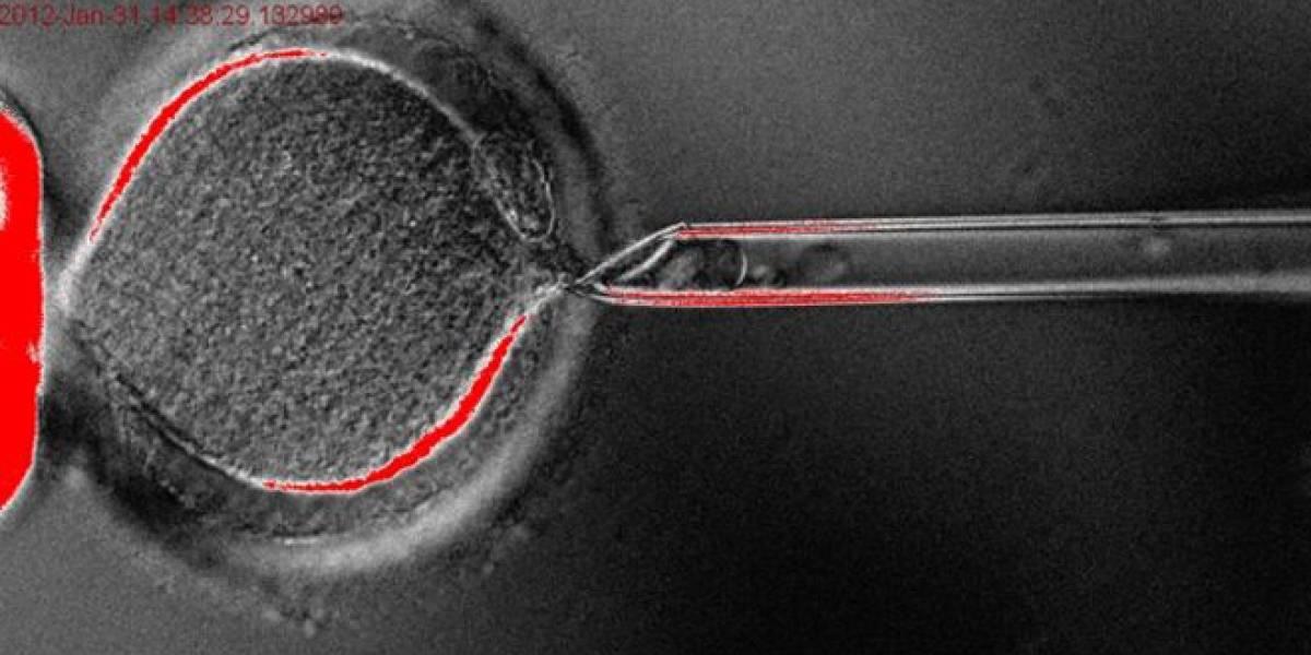 Por primera vez en la historia logran clonar células madre embrionarias humanas