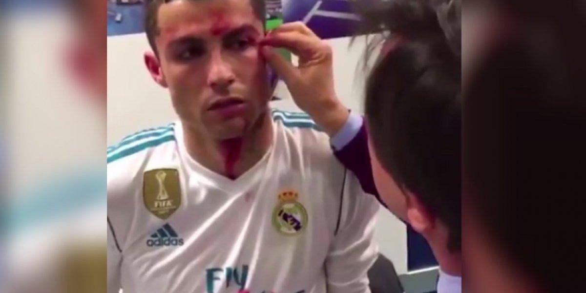 VIDEO: ¿Qué pasó en los vestidores con la herida de Cristiano Ronaldo?