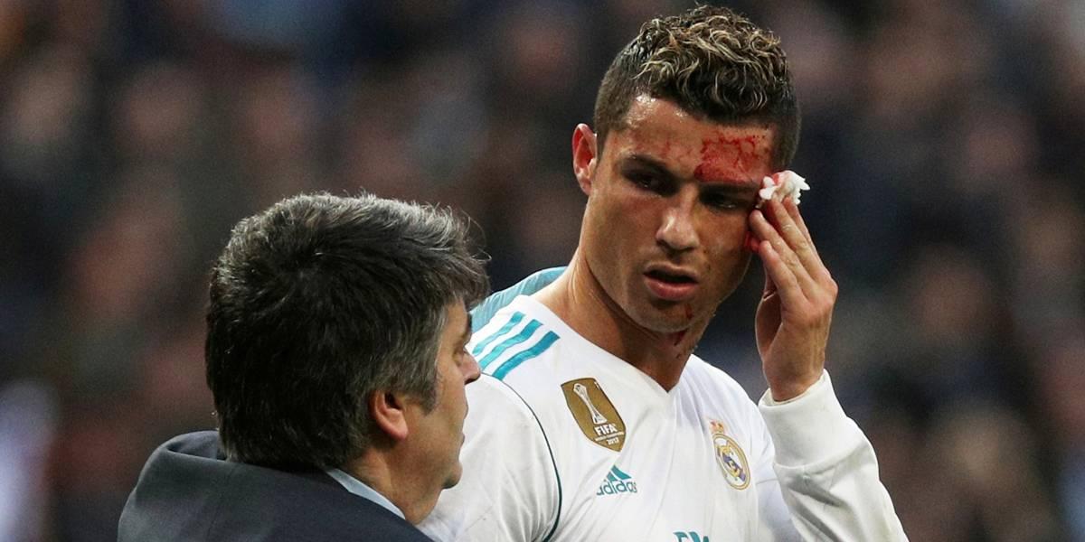 Vídeo mostra o estrago no rosto de Cristiano Ronaldo após chute na cara