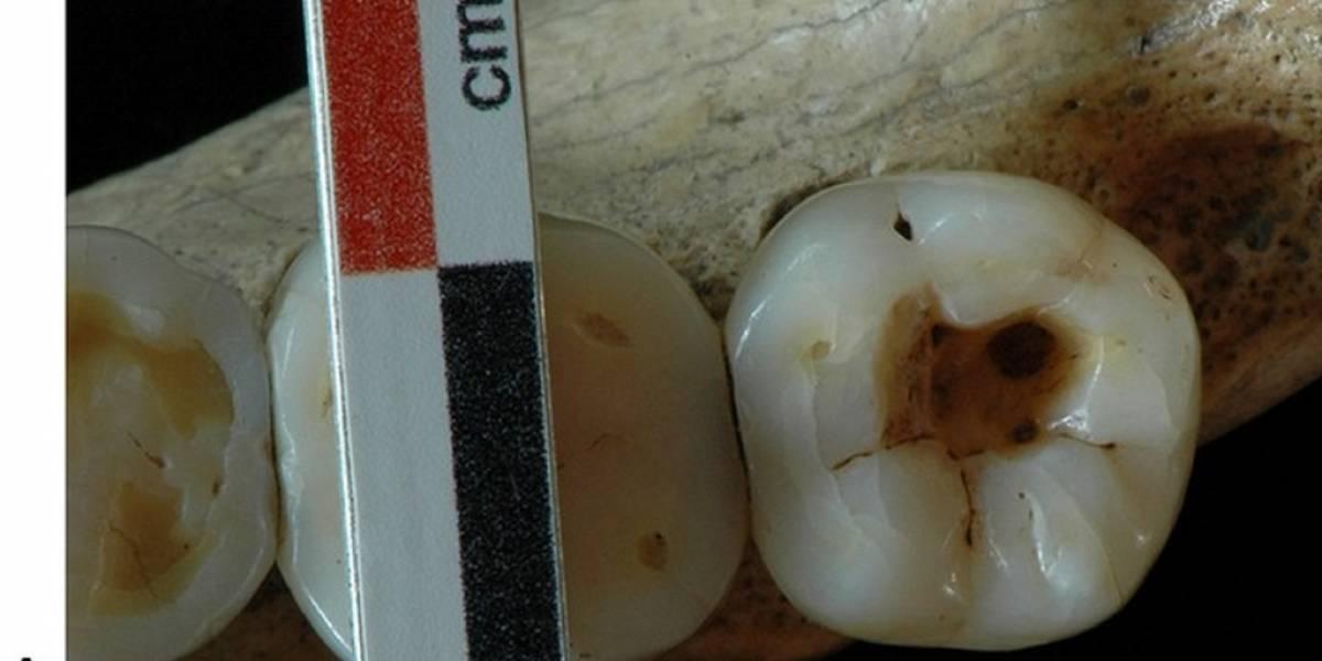 La cirugía dental más antigua data de hace 14 mil años