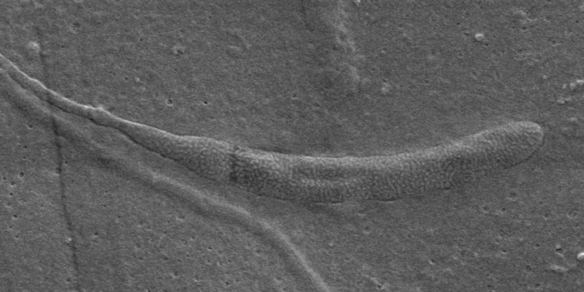 Encuentran el espermatozoide fósil más viejo en la Antártida