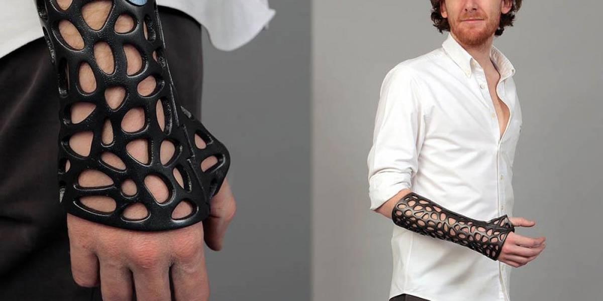 Crean férula plástica impresa en 3D que además sana con ondas ultrasónicas