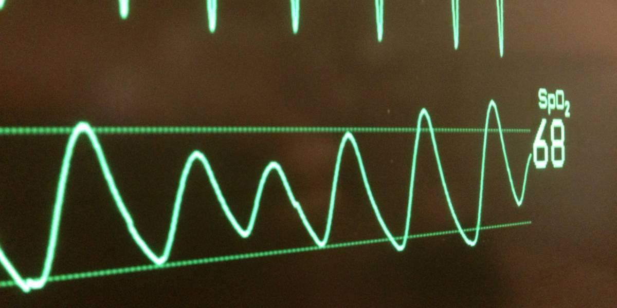 Análisis de antivirus interrumpió un procedimiento cardíaco