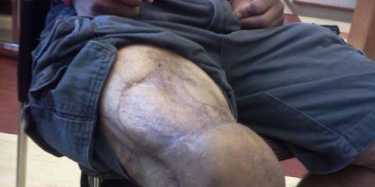 Pentágono hace crecer de nuevo los músculos de los soldados usando células de cerdo