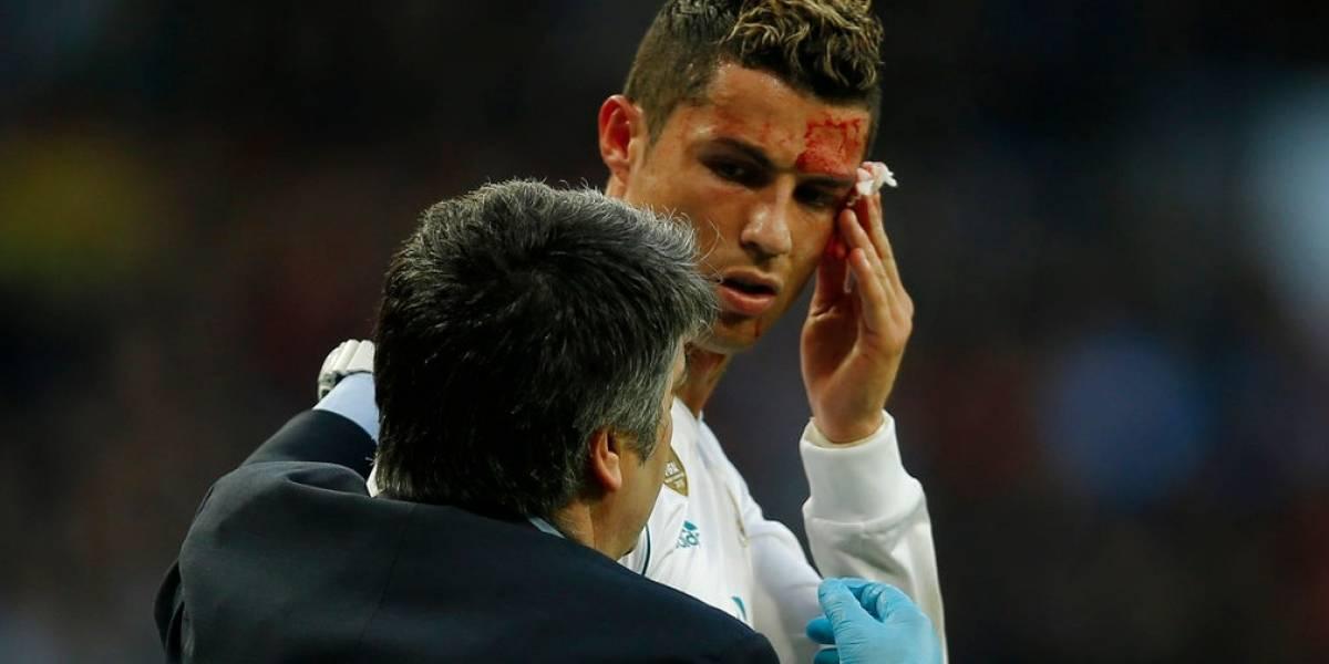 VIDEO. Así le quedó el rostro a Cristiano tras el golpeque lodejó sangrando