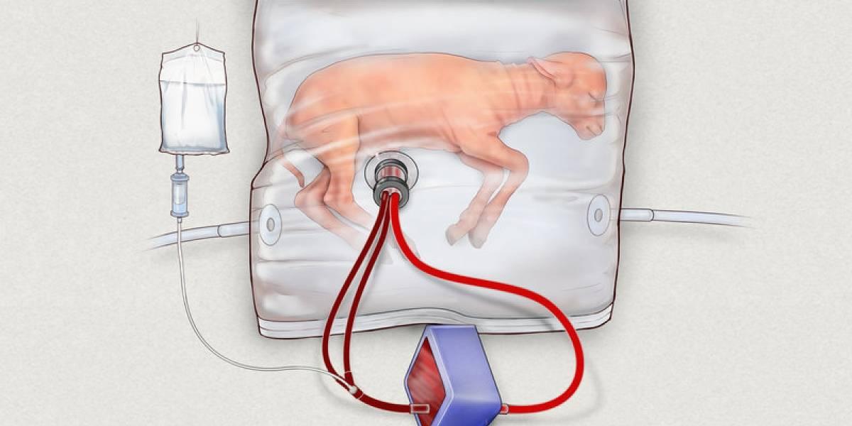 Científicos crean útero artificial para ayudar en nacimientos prematuros