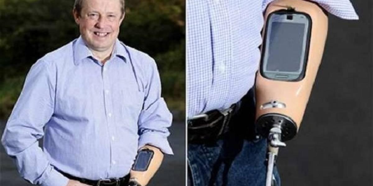 Británico aprovechó su brazo ortopédico para incrustarle su teléfono