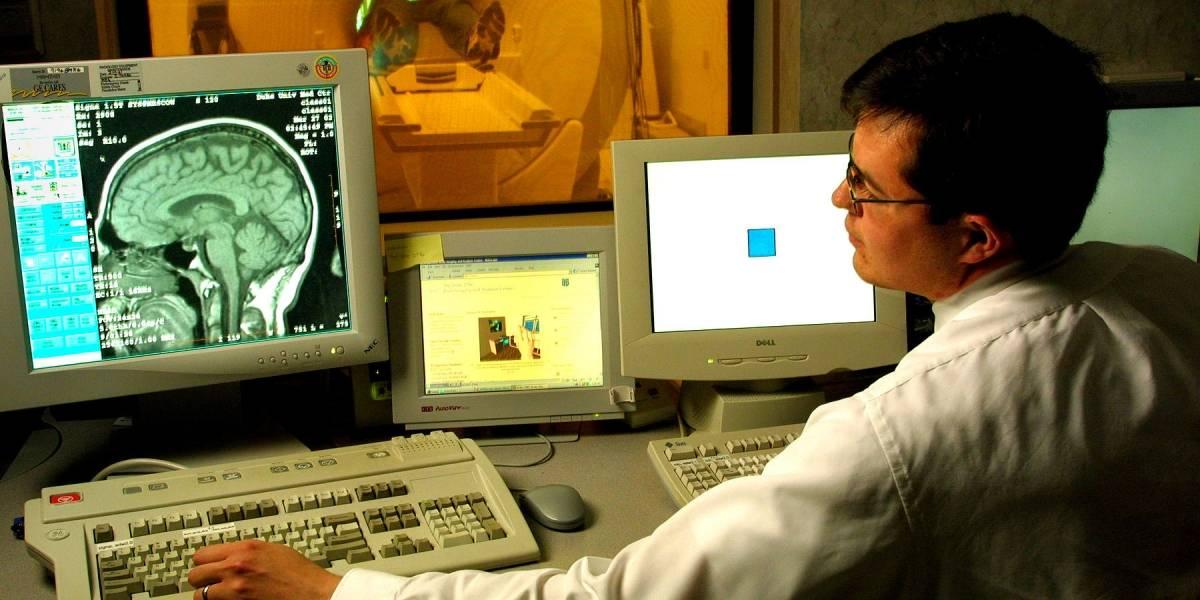 Científicos lograron reconocer letras analizando directamente al cerebro