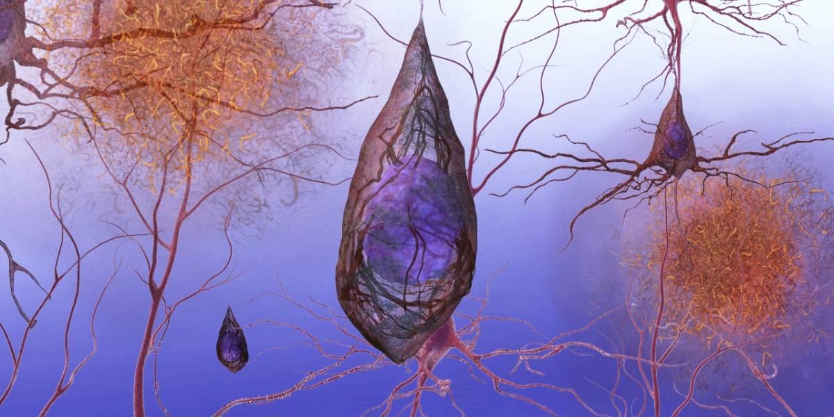 Un método no invasivo puede detectar el Alzheimer antes de que haya síntomas