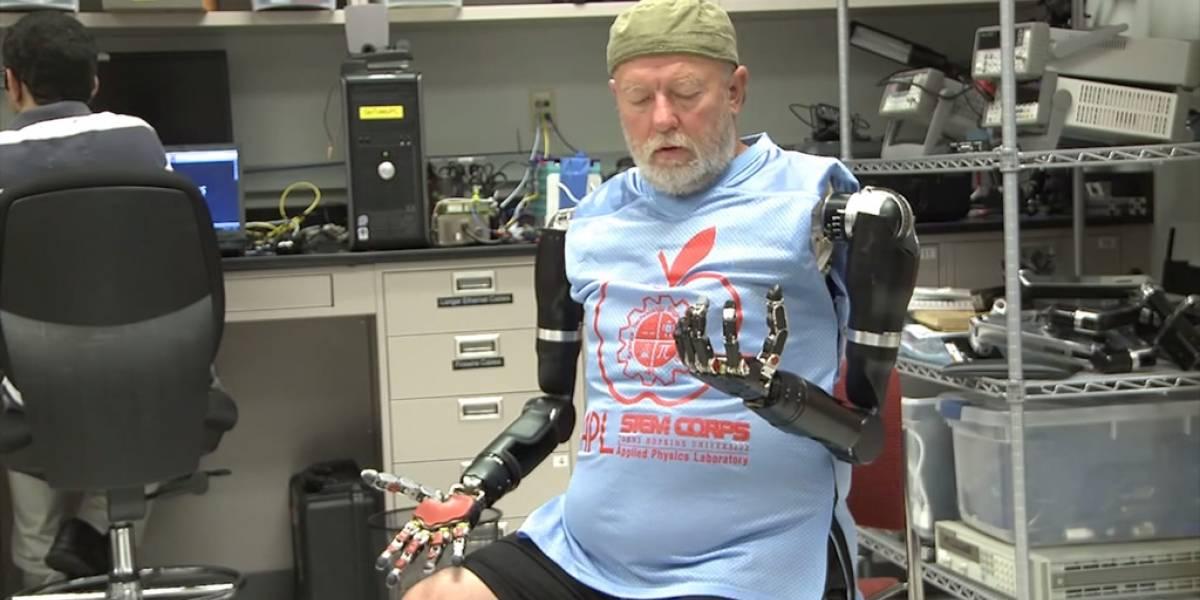 Paciente amputado logra mover prótesis con sólo pensarlo