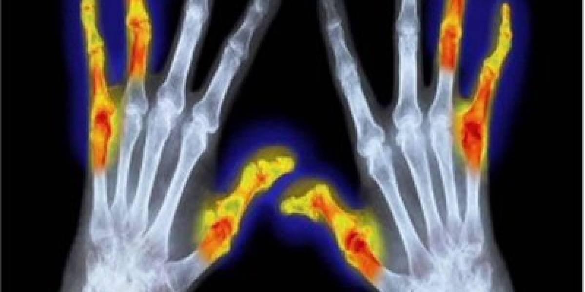 Rechazo social puede causar artritis, asma y depresión