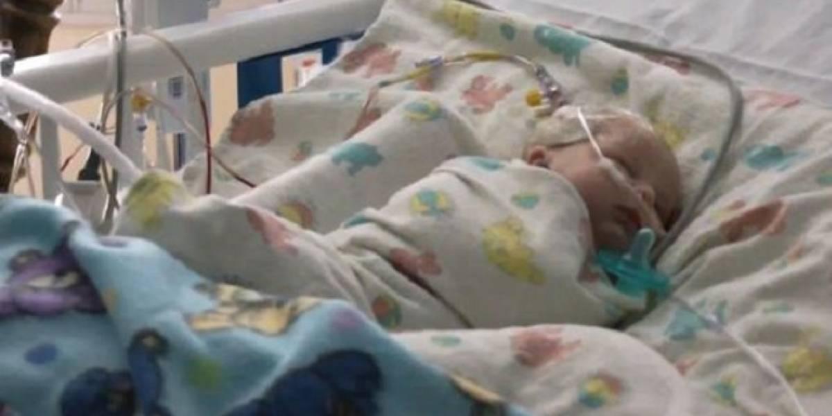 Cirujanos cierran aneurisma en cerebro de un bebé utilizando super pegamento
