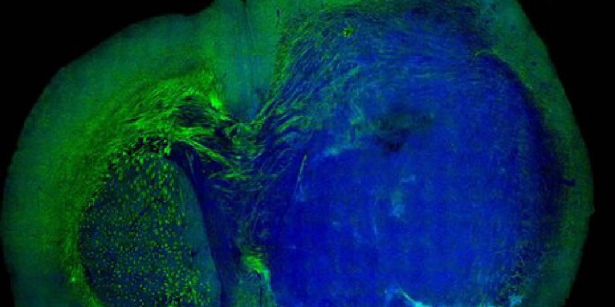 Nueva tecnología láser permite cirugías de tumores cerebrales más seguras