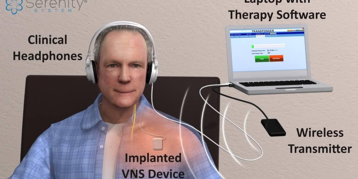 Implante estimula el cerebro a detener los ruidos en los oídos o tinnitus