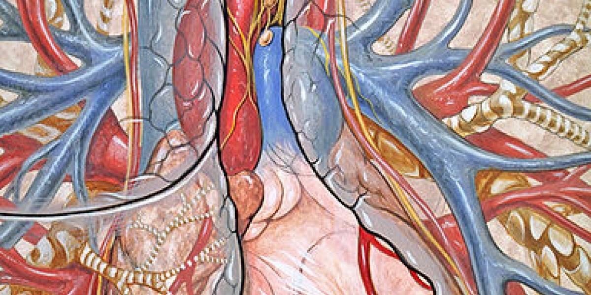 Instalan el primer 'corazón artificial' permanente en España