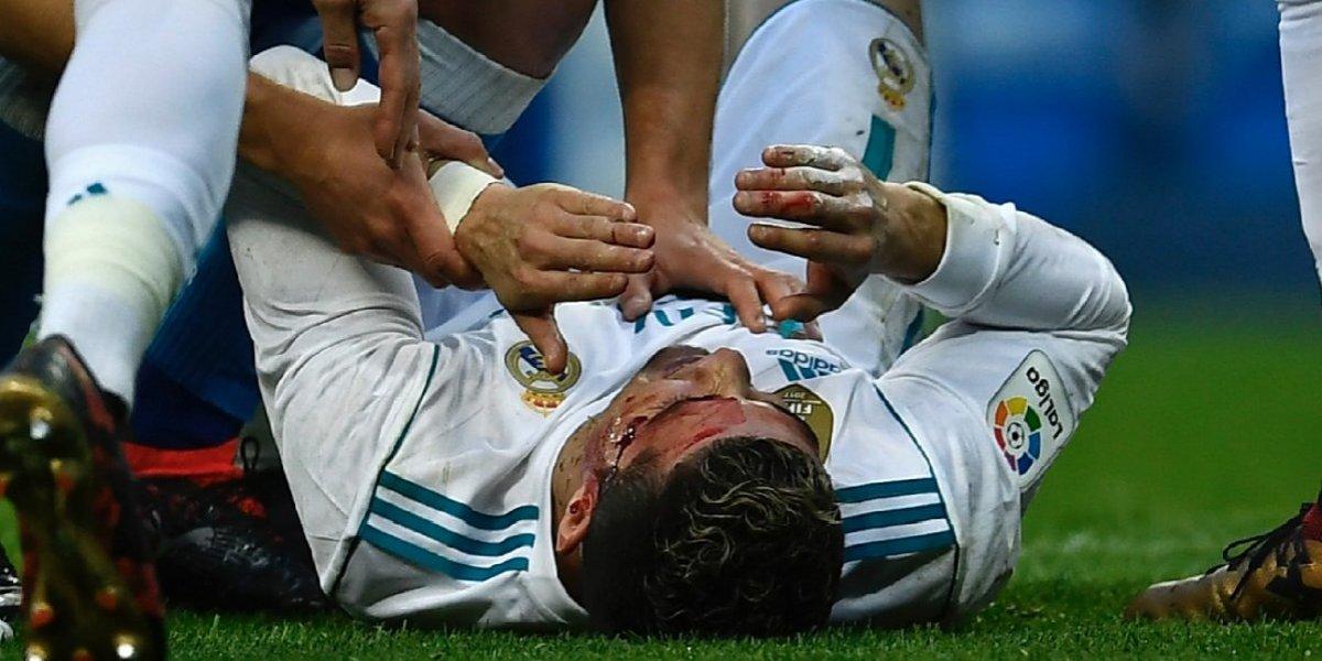 FOTOS. Cristiano Ronaldo regresa a entrenar muy hinchado tras su herida en la ceja