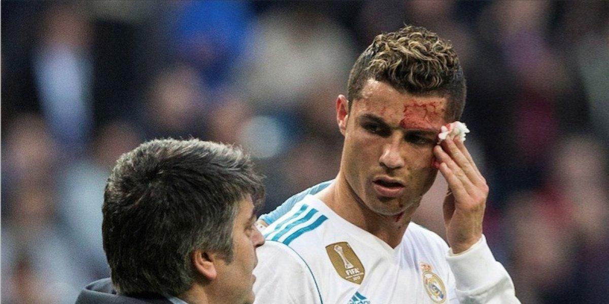 La reacción de Georgina Rodríguez al ver sangrando a Cristiano Ronaldo se hace viral