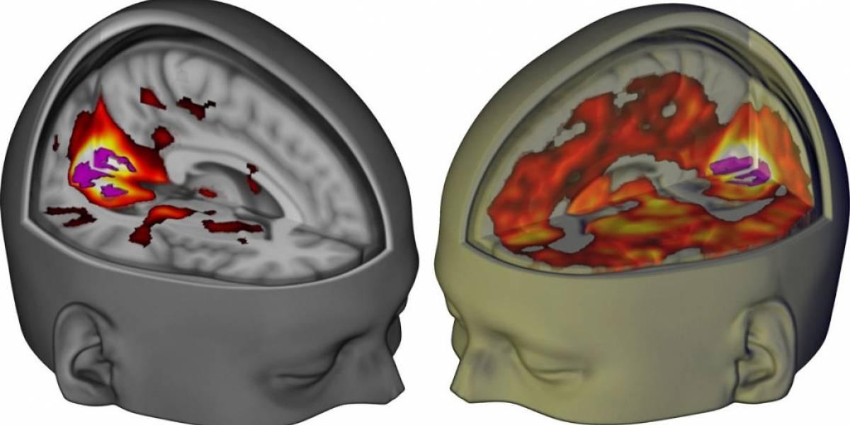 Así luce el cerebro humano bajo los efectos del LSD