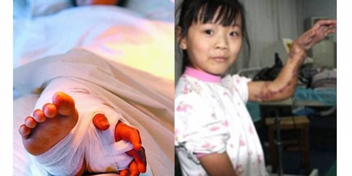 Eeew: Niña recupera mano cercenada tras tenerla injertada en una pierna por tres meses