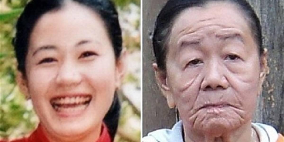 Mujer vietnamita sufre extraña enfermedad que avejentó su aspecto en 50 años