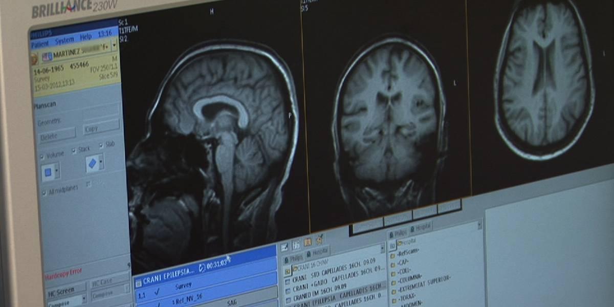 Tratamiento en monos logra eliminar la posible causa del Alzhéimer