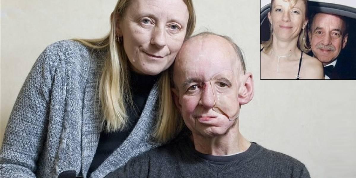 Hombre recupera su rostro gracias a impresoras 3D