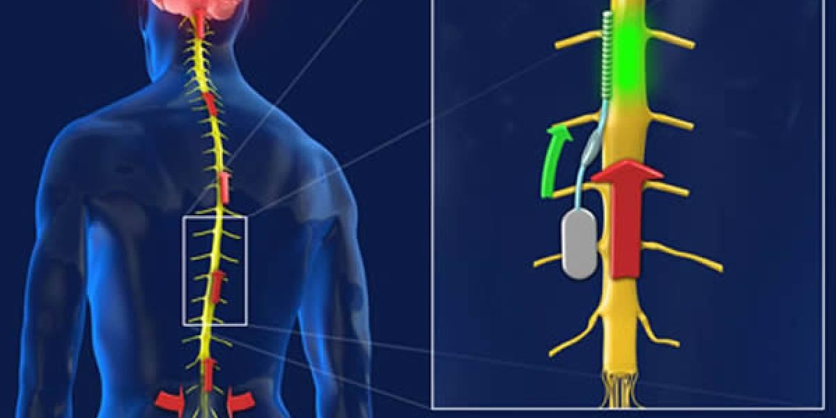 Un chip en la médula espinal suprimirá el dolor crónico