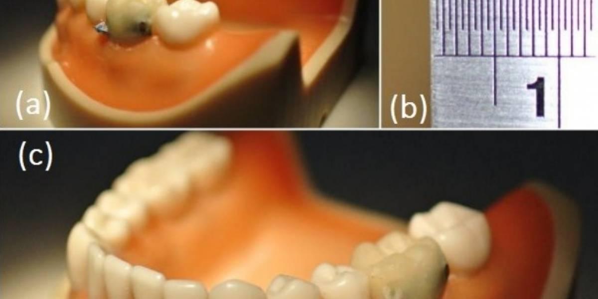 Científicos desarrollan sensor dental que detecta cuando fumamos o tosemos